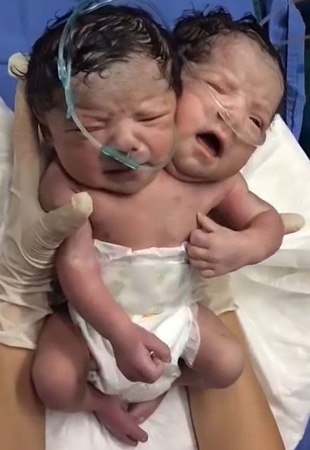 siamo-dvyniai